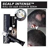 2PCS Scalp Intense Roll-on Fast Hair Growth Serum - Anti Hair Loss Serum & Scalp Massager Repair Natural Hair Care Essence Treatment