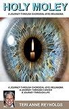 Holy Moley: A Journey Through  Choroidal (Eye) Melanoma