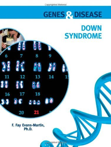 Down Syndrome (Genes & Disease) (English Edition)