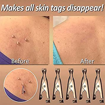Skin Tag Remover Small Clips Copper Tools Small Clip Copper Tag Out Skin Tag Remover Skin Wart Tag Tattoo 10pcs Skin Tag Remover Device for Small to Medium Skin Tags