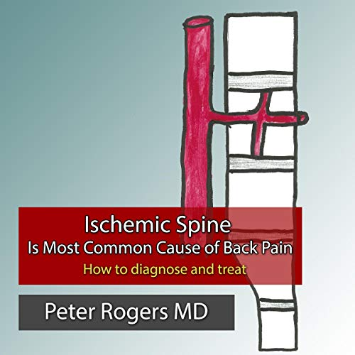 Ischemic Spine Is Most Common Cause of Back Pain: How to Diagnose and Treat audiobook cover art