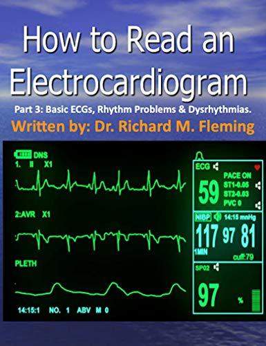 How to Read an Electrocardiogram. Part 3: Basic ECGs, Rhythm Problems & Dysrhythmias. (English Edition)