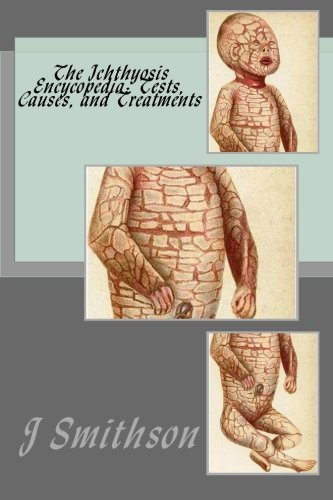 The Ichthyosis Encycopedia: Tests, Causes, and Treatments