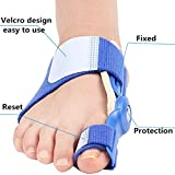 Orthotics For Bunions Review and Comparison