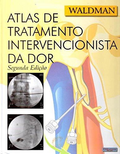 Atlas De Tratamento Intervencionista Da Dor
