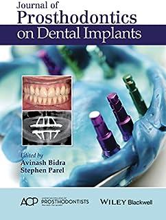 Journal of Prosthodontics on Dental Implants (English Edition)