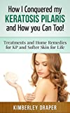 How I Conqured my Keratosis Pilaris and How you Can too! : Treatment and Home Remedies for KP and Softer Skin for life: How to get rid of chicken skin / appearance of goose bumps on skin (Skin Care)