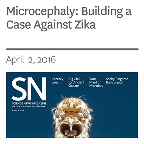 Microcephaly: Building a Case Against Zika audiobook cover art