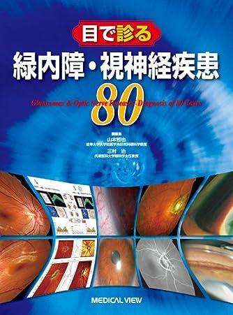 目で診る緑内障・視神経疾患80
