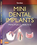 Dental Implants Review and Comparison