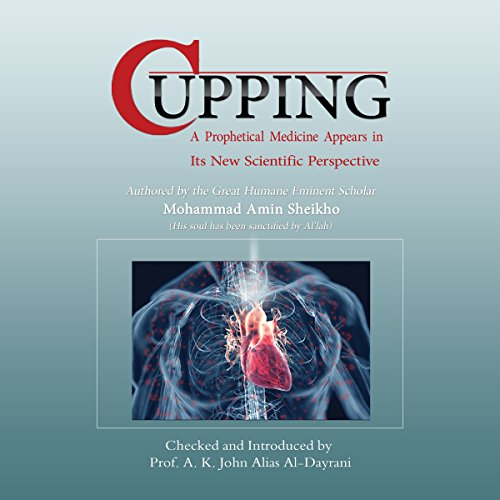 Cupping audiobook cover art