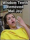 Wisdom Teeth Removed - Mel Joy