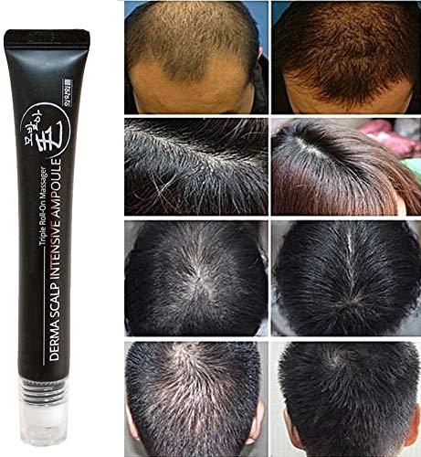 Scalp Intense Roll-on Hair Growth Serum,Derma Scalp Intensive Ampoule Triple Roll Massager,Fast Hair Growth Anti Hair Loss Serum & Scalp Massager (1pcs)