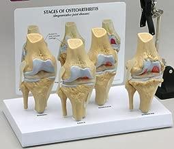 4-stage Osteoarthritis Knee Anatomical Classroom Education Model CEM