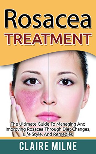 Rosacea Treatment The Ultimate Guide To Managing And Improving