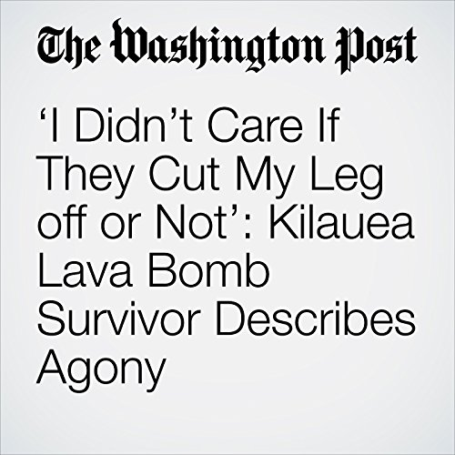 'I Didn't Care If They Cut My Leg off or Not': Kilauea Lava Bomb Survivor Describes Agony copertina