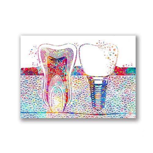 """ZMFBHFBH Cuadro en Lienzo Arte Dental Imagen Implante Dental Dentista Arte de la Pared Pintura Medicina Higienista Cartel Clínica Dental Decoración 20x30cm (7.8""""x11.8) Sin Marco"""