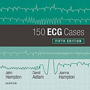 150 ECG Cases Kindle Edition
