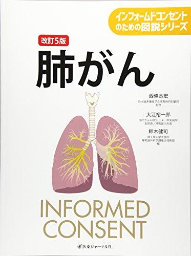 肺がん (インフォームドコンセントのための図説シリーズ)