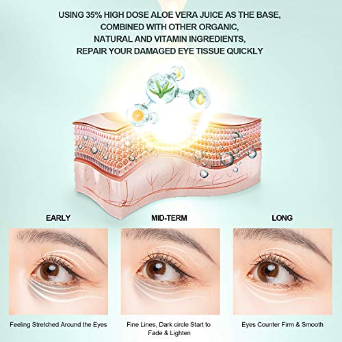 51qny bKnQL - Under Eye Cream - Eye Repair Cream Anti Aging & Dark Circle Eye Treatment Retinol Eye Cream