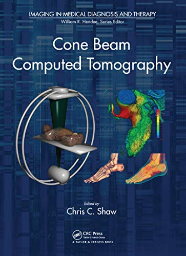 Cone Beam Computed Tomography (English Edition