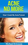 Acne: How I Cured My Acne Forever: Ex-Sufferer Discovers Powerful Secret To Acne Free Skin (Acne Cure, Acne No More, Acne Diet, Acne Scar, Acne Care, Acne ... Free Skin, Acne Treatment) (English Edition)