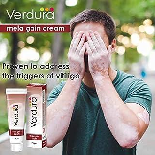Herbal Aid Mela Gain Cream - Vitiligo | Parches Blancos Piel | Repigmentación | Marcas Blancas | Ungüento - Paquete de 75 g