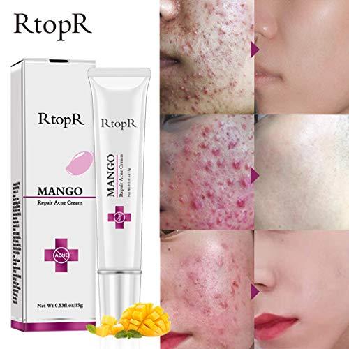 RtopR Crème Cicatrices Acne, Creme Acne Vergetures Crème Scar Cream, Acne Traitement Crème pour le corps et le visage, Soin du visage à la crème de traitement contre l'acné à la mangue