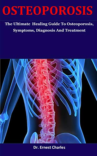 Osteoporosis: The Ultimate  Healing Guide To Osteoporosis, Symptoms, Diagnosis And Treatment (English Edition)