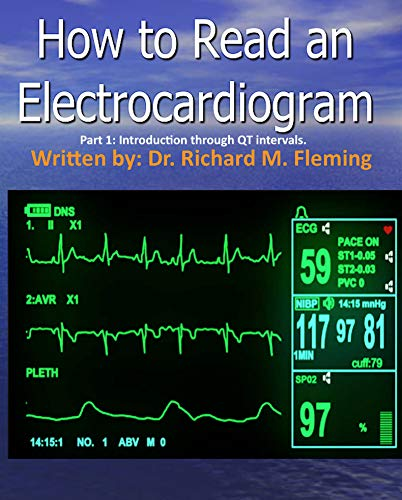 How to Read an Electrocardiogram. Part 1: Introduction through QT intervals. (English Edition)