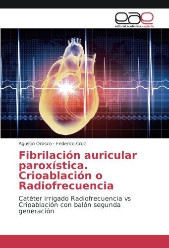 Fibrilación auricular paroxística. Crioablación o Radiofrecuencia:...