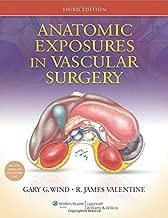 المكشوفة تشريحي في vascular جراحية