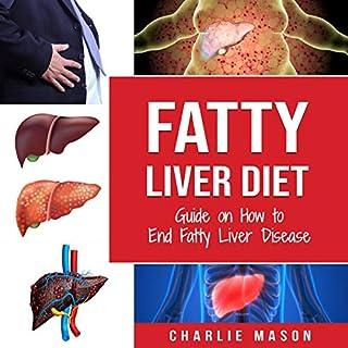 Fatty Liver Diet audiobook cover art