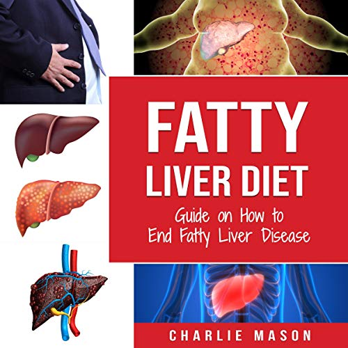 Fatty Liver Diet audiobook cover art