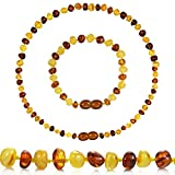Temgee Baltic Amber Necklace Gift Set - Raw Amber Necklace and Bracelet - Anti-Flammatory, Pain Relief,multistone14in+6in