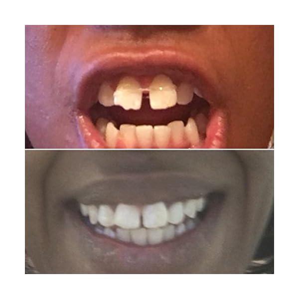 Orthodontic Gap Teeth Bands 3/16