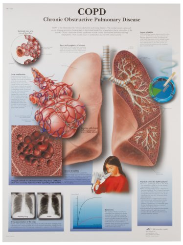 3B Scientific VR1329L Glossy Laminated Paper Copd Chronic Obstructive Pulmonary Disease Anatomical C