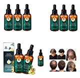 7X Rapid Growth Hair Treatment,7 Day Hair Growth Serum Essence Oil,Stimulates New Hair