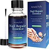 Amada Pure, Nail Fungus Treatment, Toenail Fungus Treatment, Fungus Stop, Fingernail Fungus, Fungi Nail and Fungal Nail Solution, Nail Fungus Remover, Toenail Fungus Medication (30ml)