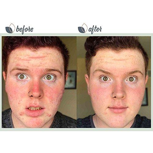 Bioclarity Acne Treatment System