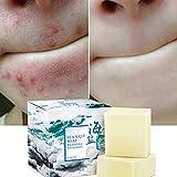 Natürliche Gesicht Meersalz Seife mit Ziegenmilch, Tiefenreinigung, Entfernen von Akne, Mitessern,...