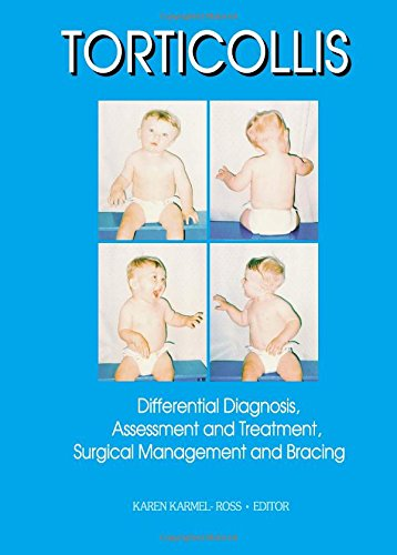 Torticollis: Differential Diagnosis, Assessment and Treatment, Surgical Management and Bracing (Physical & Occupational