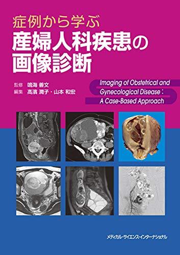 症例から学ぶ産婦人科疾患の画像診断の詳細を見る