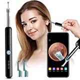 Ear Wax Removal Tool with Ear Wax Removal Camera, BEBIRD Ear Cleaner, 1080P FHD Wireless Ear Wax Remover Otoscope with LED Light, Endoscope Ear Pick, Safe Ear Wax Removal Kit for Adults Kids & Pets