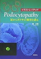 イラストレイテッドPodocytopathy―尿からポドサイト障害を診る