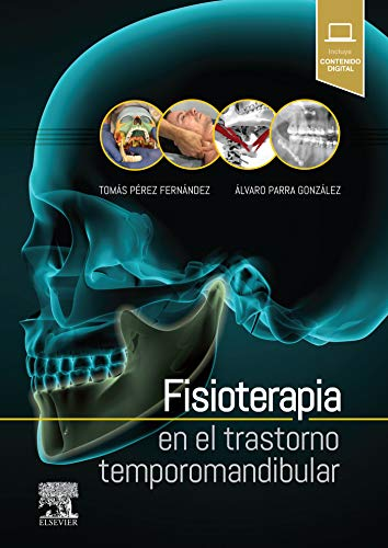 Fisioterapia en el trastorno temporomandibulardeTomás Pérez Fernández