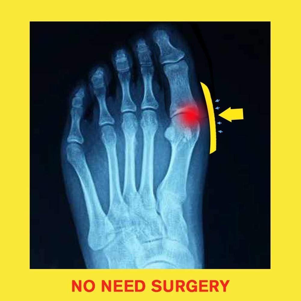 Damm vrouwen pijnbestrijding schoenen sandalen pu zachte platte slippers voor orthopedische grote teen botcorrectie, abrikoos, 37 platform elke gelegenheid Black