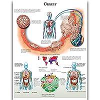 Cancer 壁の解剖ポスター 看護学生教育用解剖学的ポスターチャート 防水キャンバス 医師の愛好家の子供の啓発教育のための医学疾患マップ (24x32inches)