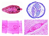 Mikropräparat Serie - Parasitologie