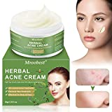 Akne Creme, Anti Pickel Creme, Anti Akne Creme, Herbal Anti Acne Cream...